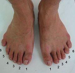 Polidactilie în picioare