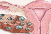 Поликистоз яичников - лечение народными средствами