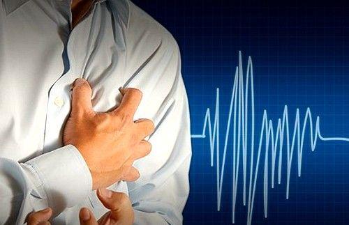 тахикардия как симптом ревмокардита