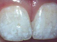 Флюороз - одна из причин белых пятен на зубах