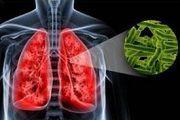 prichinu vozniknoveniia tuberkuleza legkix
