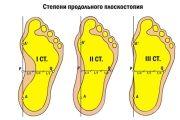 prodolnoe-ploskostopie 1,2,3 stepeni
