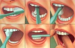 Правильная чистка ротовой полости - профилактика болезней зубов