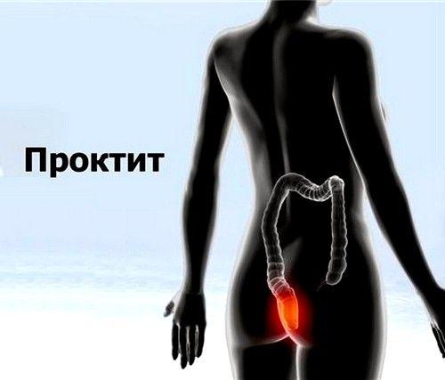 Проктит симптомы и лечение