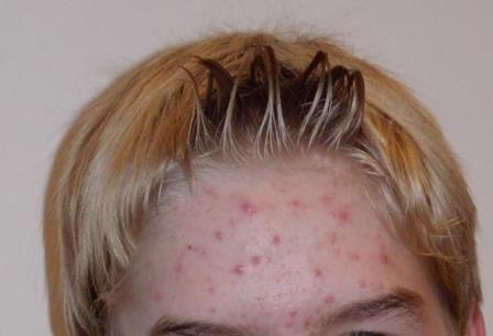 Akne na čelu - pravi problem, i zato je neophodno da saznate uzrok i eliminirati smetnje