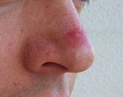 Koji su bubuljice na nosu