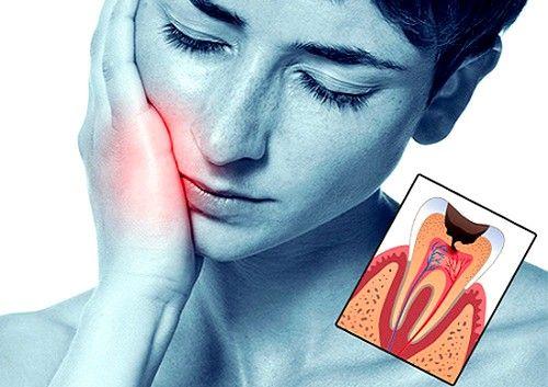 Konzervativna terapija - liječenje ranog oblika pulpitis koji zadržava sva svojstva zuba, pažljivo uklanjanje džepove zapaljenja
