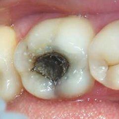 Боль в зубе - ведущий симптом пульпита