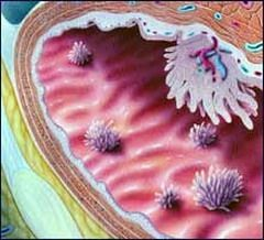Рак мочевого пузыря развивается в уротелии или базальной мембране