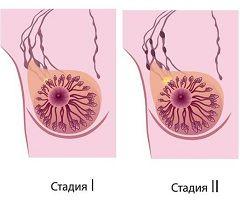 Виды и стадии рака молочной железы