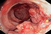 Rak tolstoy kishki – lechenie i prognozyi