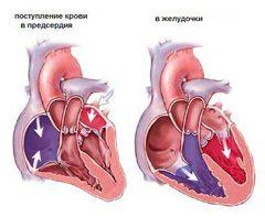 Ревматизм сердца схема