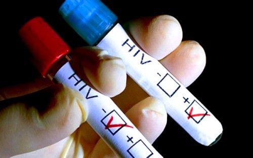 Tipul sarcomul Kaposi epidemie este indicația principală a prezenței HIV
