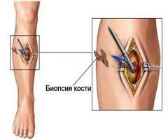 biopsija sarkom