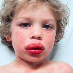 Анафилактический шок - аллергическая реакция
