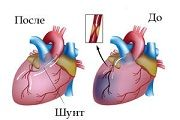 Шунтирование сосудов сердца (аортокоронарное шунтирование)