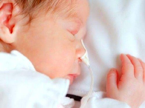 Низкий вес ребенка при рождении может быть причиной гидроцефалии головного мозга