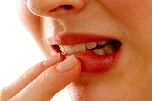 гингивит также может стать следствием стресса, нарушения обмена веществ, нехватки витаминов или хронической интоксикации