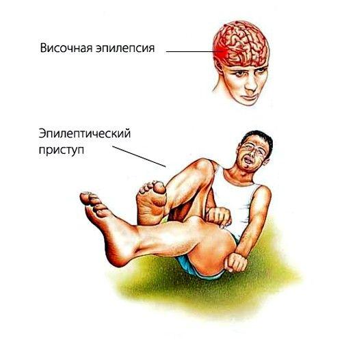 epilepsie simptomatică generalizata poate fi cauzata de o trauma la creier in timpul nasterii