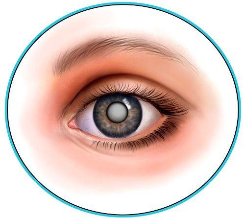 Облучение и радиация также могут привести к возникновению катаракты