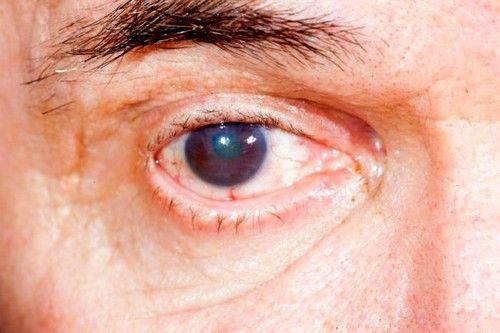 Начальная стадия заболевания практически не затрагивает хрусталик, он сохраняет свою прозрачность