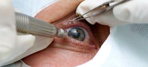 При первых признаках, симптомах катаракты глаза необходимо посетить специалиста