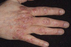 Симптомы псориаза на различных участках кожного покрова