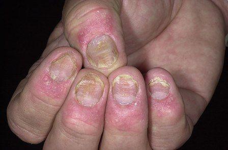 Симптомы псориаза ногтевых пластин на руках