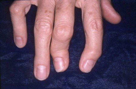Симптомы псориаза суставов, суставный псориаз