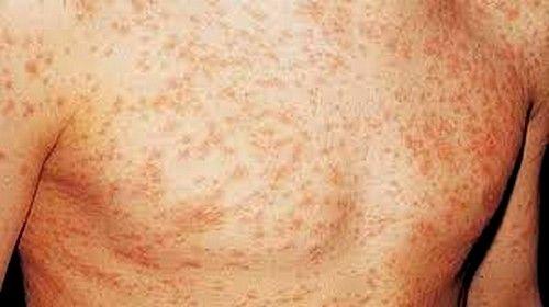Первые симптомы ВИЧ у мужчин проявляются в красных пятнах, сыпи по всему телу или же появлении бесцветных пятен на участках кожи