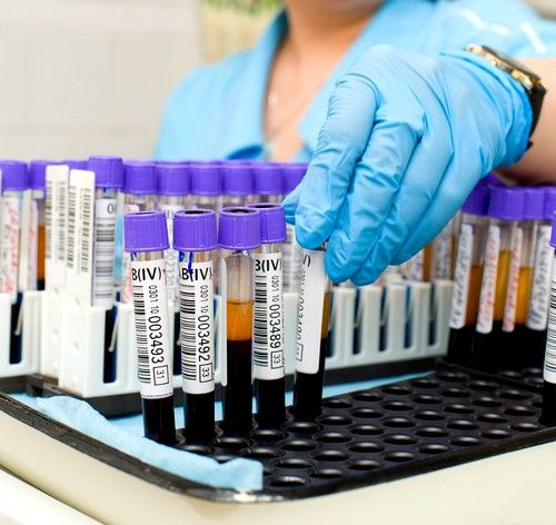 Чтобы окончательно убедиться в заболевании, необходимо немедленно посетить поликлинику и сдать необходимый анализ крови