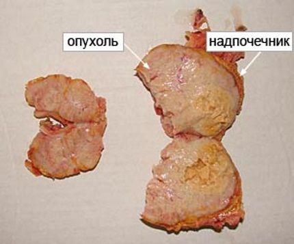 Tumorile glandei corticosuprarenale