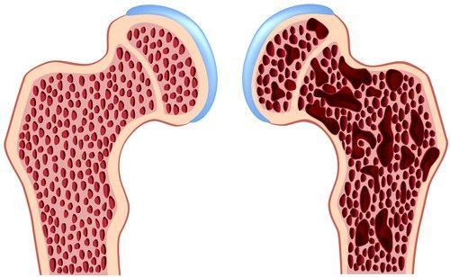 La tratamentul osteoporozei prematură poate să apară