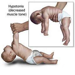 Мышечная гипотония - симптом первой фазы синдрома Прадера-Вилли