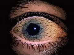 Синдром сухого глаза характеризуется нарушением качества слезной пленки