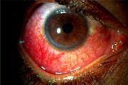 Sindrom Zhilbera - prichinyi simptomyi lechenie