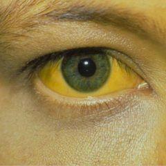 Желтуха - основной симптом синдрома Жильбера