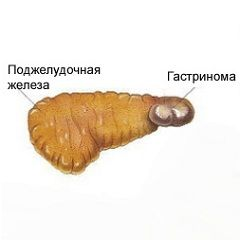 Синдром золлингера-эллисона