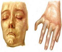 Кожа лица и рук у больных системной склеродермией ассоциируется с воском