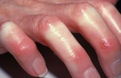 Симптомом системной склеродермии является бледная кожа рук из-за нарушения кровотока