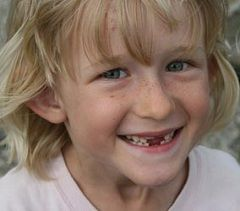 Болезненные ощущения - нормальное явление при смене зубов у детей