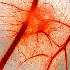 Нарушение кровообращения - одна из причин сосудистой недостаточности