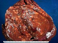 Стеатоз - самый распространенный гепатоз