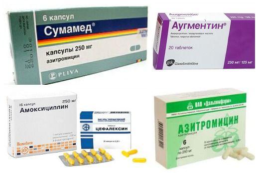 Antibiotice pentru infecție streptococică în gât