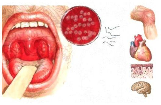 Complicațiile de infecție streptococică a gâtului