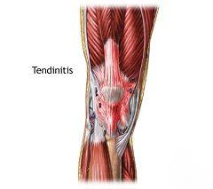 Тендинит - профессиональная болезнь спортсменов
