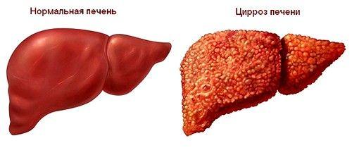 В большинстве случаев цирроз спровоцирован хроническими печеночными патологиями