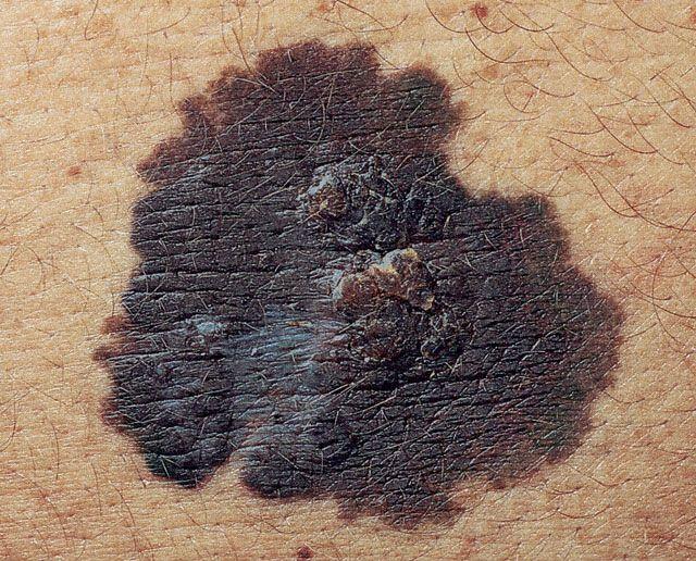 Поверхностная меланома составляет примерно 70 процентов от всех случаев