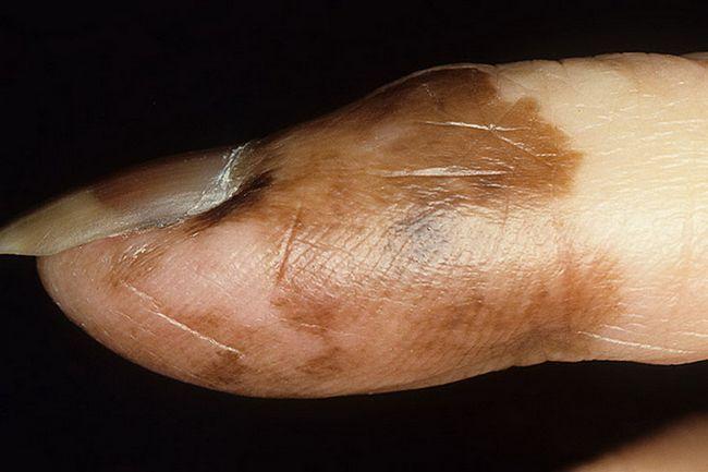 Лентигинозная акральная меланома