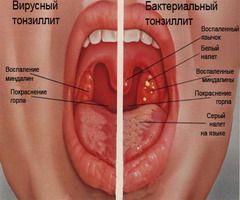 Симптомы вирусного и бактериального тонзиллита